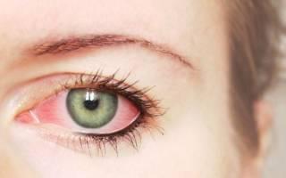 Глаза болят и слезятся гноятся глаза