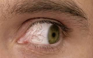 Болит глаз при наклоне головы вперед