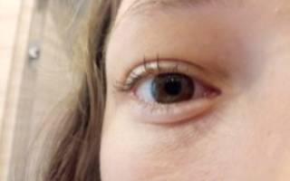 Что делать если опухло нижнее веко под глазом и болит?