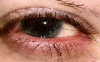 Хронический мейбомиевый блефарит симптомы и лечение