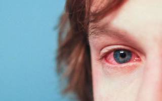 Аллергический конъюнктивит у ребенка 6 лет