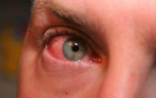 Грибковый конъюнктивит у детей лечение