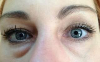 Красный мешок под глазом не болит