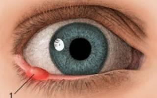 Можно ли носить линзы когда ячмень на глазу?