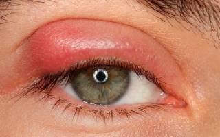 Как вылечить ячмень на глазу за одну ночь?