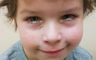 Глаз слезится и покраснел и болит у ребенка