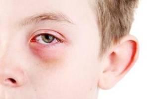 Что делать если продуло глаз и он болит?