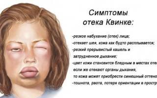 Глаз опух и болит у ребенка