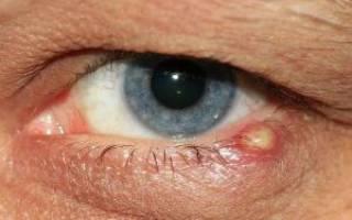 Ячмень на глазу заразен для окружающих