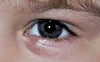 Хронический ячмень на глазу у ребенка