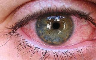 Могут ли болеть глаза от глистов
