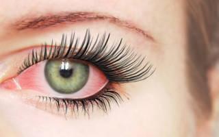 Почему после наращивания ресниц болит глазное яблоко одного глаза?