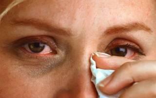 Тушью попала в глаз болит ужасно