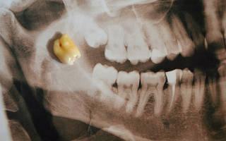 Может ли болеть глаз при прорезывании зуба мудрости