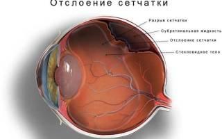 Глаз уменьшился в размере и болит