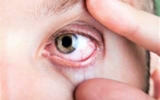 При каких инфекциях болят глаза