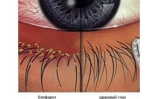 Как выглядит блефарит на глазу?
