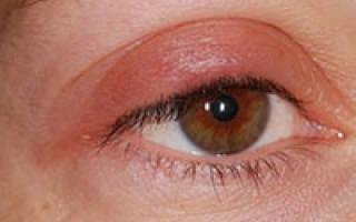 Опухло веко над глазом и болит чем лечить народные средства