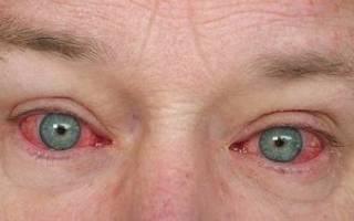 Почему глаза красные и болят и спать хочется?
