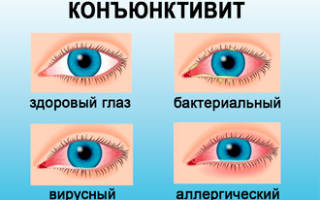 Слезятся глаза болит голова насморк какие препараты антивирусные пропить
