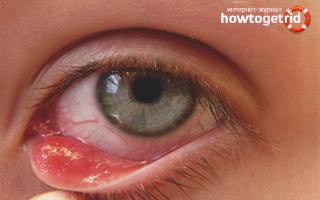 Как можно избавиться от ячменя на глазу в домашних условиях?