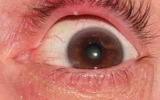 Прыщик на слизистой глаза болит
