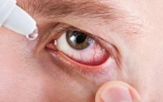 Как болят глаза при хламидиозе?