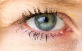 Что будет если не лечить ячмень на глазу на?
