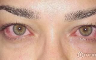 После ламинирования ресниц болят глаза