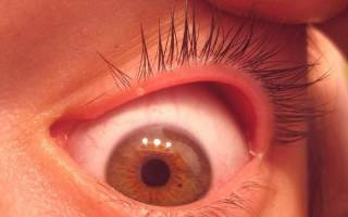 Болит глаз под верхним веком больно нажимать и чешется