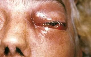 Грибковый конъюнктивит глаз лечение у взрослых