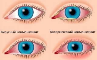 Болит глаз больно моргать и опухло нижнее веко