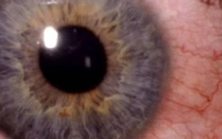 Конъюнктивит влияет ли на зрение