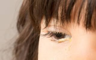 Из глаз течет липкая жидкость желтого цвета болит