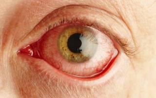 Как лечить аллергический конъюнктивит глаз у взрослых?