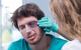 Болит глаз и слезится после удара