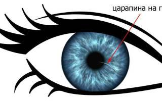 Царапина роговицы глаза как долго болит