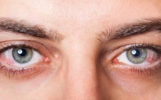 Лопнули капилляры в глазу и болит глаз