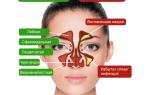 Болит пазуха носа под глазом