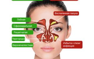 Болит пазуха под глазом без насморка