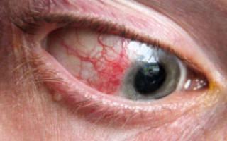 Глаза красные и болят при простуде