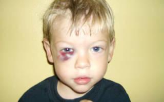 Ребенок ударил в глаз болит