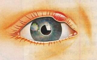 Сахарный диабет и ячмень на глазу