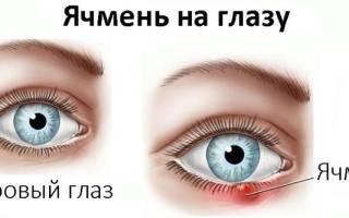 Ячмень на глазу как лечить можно ли греть