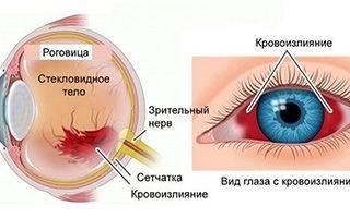 Глаз налился кровью и болит что делать