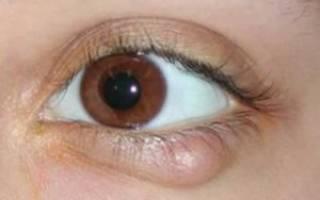 Болят нижние веки глаз и образуются шишечки