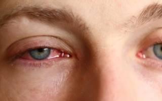 Вирусный или бактериальный конъюнктивит у ребенка как отличить
