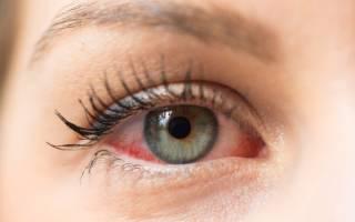 Можно ли при конъюнктивите промывать глаза мирамистином?