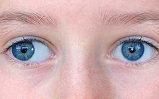 Косоглазие содружественное альтернирующее сходящееся косоглазие у детей