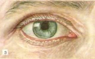 Блефариты этиология клиника лечение